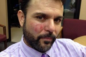 Andres Herrera attacked
